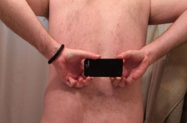 Painful: The man took to Reddit to show off his unusual backside